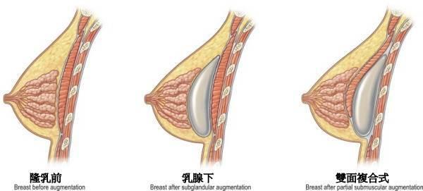 右边胸下面痛怎么回事